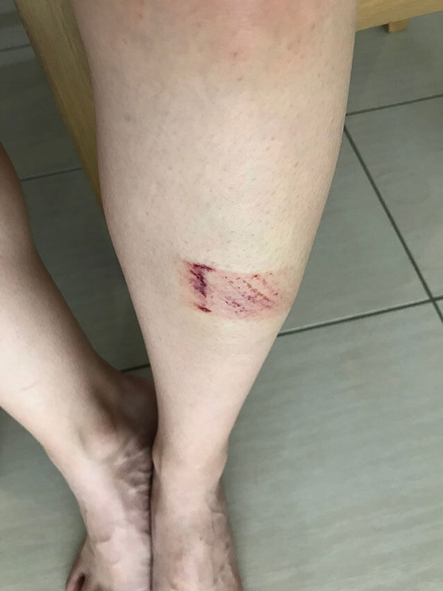A leg with a heavy bruise on the shin, about the size of a small pack of gum. It's deep red in some areas